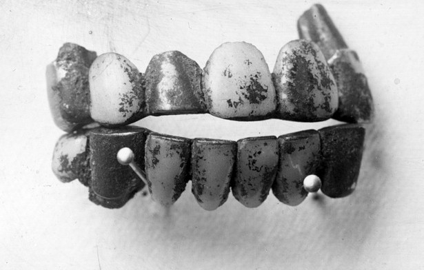 belle-gunness-teeth40